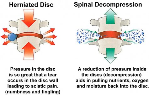 Spinal Decompression | Chiro-Medical Group, Inc